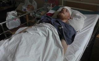Умышленное причинение тяжкого вреда здоровью, повлекшее смерть: статья 111 УК РФ