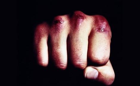 Умышленное причинение тяжкого вреда здоровью: повлекшее смерть, ст. 111 УК РФ